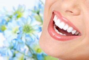 beautiful-smile-dental-veneers